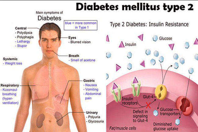 diabetes-melitus-type-2